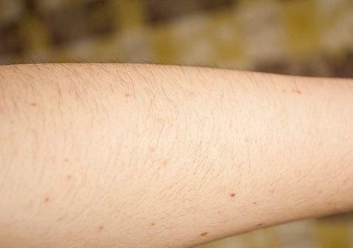 Triệt lông một nửa cánh tay bao nhiêu tiền