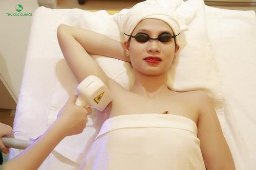 Triệt lông nách bằng Laser Diode