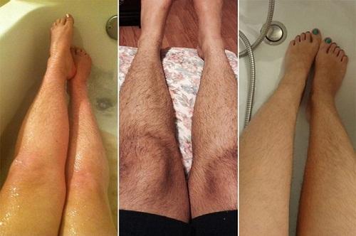 cách xử lý đám lông rậm hiệu quả
