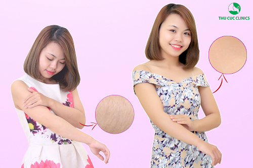 hiệu quả triệt lông tay tai Thu Cúc Clinics