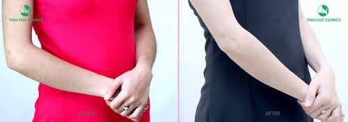 hình ảnh trước và sau khi triệt lông tại Thu Cúc Clinics