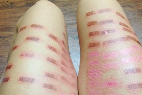 tác hại của triệt lông bằng laser