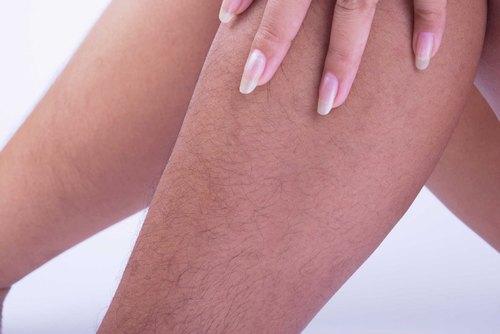 Nguyên nhân khiến lông mọc nhiều ở nữ giới