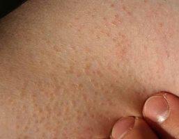 Dày sừng nang lông có chữa được không?