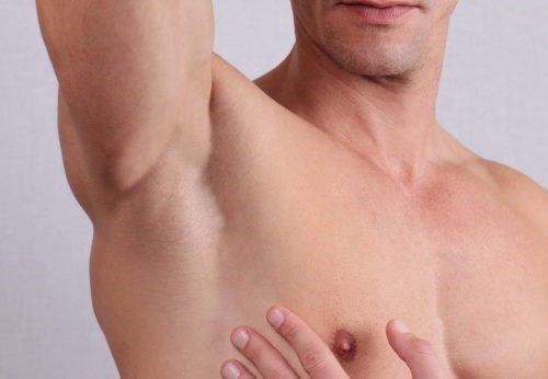 Ngày càng có nhiều khách hàng quan tâm đến dịch vụ triệt lông nách cho nam bằng laser thẩm mỹ.