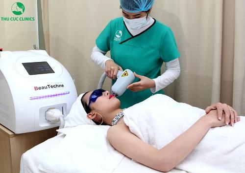 triệt lông mặt bằng công nghệ Laser Diode