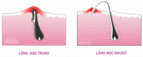 Nếu bị viêm nang lông bạn sẽ thấy lông mọc ngược vào bên trong, xoắn tròn lại, sợi lông thường mỏng còn lớp da bên ngoài thì sưng tẩy và đỏ.