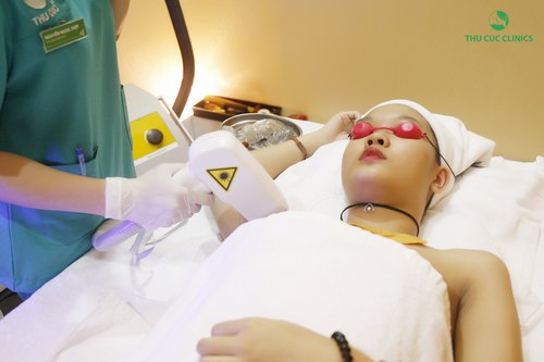 Công nghệ tẩy lông nách bằng Laser Diode an toàn hiệu quả.