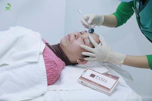 Nếu muốn khắc phục triệt để khuyết điểm lỗ chân lông to thì chị em nên tới Thu Cúc Clinics và lựa chọn công nghệ tế bào gốc P'cell.