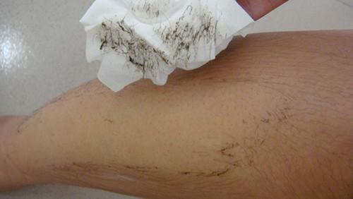 Tự tẩy lông tại nhà có thể gây nhiều nguy hại cho làn da.