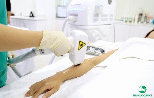 Khách hàng thực hiện công nghệ triệt lông bằng Laser Diode tại Thu Cúc.
