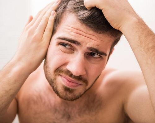Có rất nhiều nguyên nhân gây rậm lông ở nam giới.