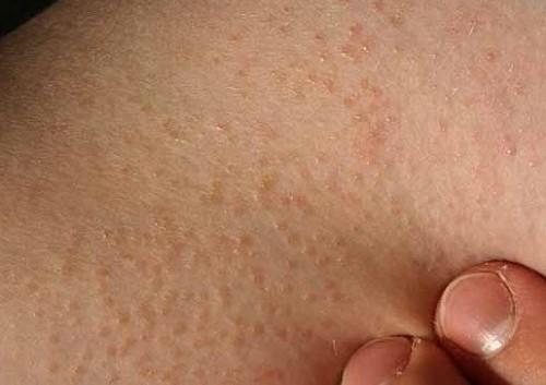 Viêm lỗ chân lông có điều trị triệt để?