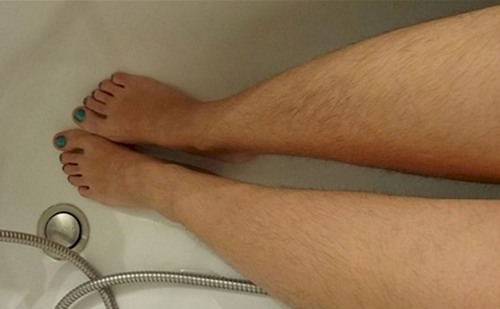 Lông chân nhiều có ý nghĩa gì? Lông chân gây mất thẩm mỹ của đôi chân, khiến chị em không tự tin khi diện váy ngắn.