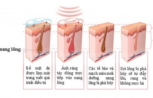 Cơ chế triệt lông thông minh của Thu Cúc Clinics hiệu quả triệt lông đạt đến hơn 95%