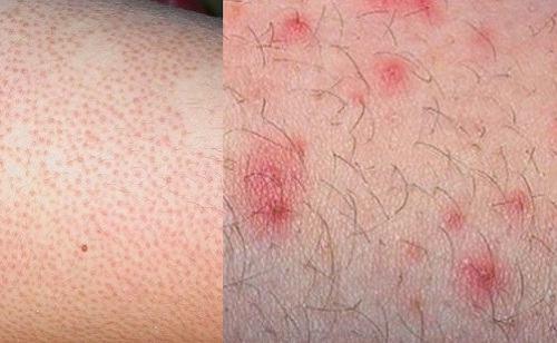 Cách phòng tránh và chữa trị viêm nang lông