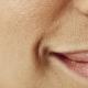 Cách trị lỗ chân lông to trên da mặt