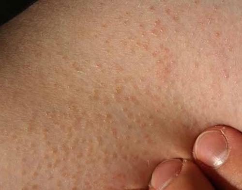 Dày sừng nang lông có biểu hiện là da sần sùi, có thể sưng đỏ tại các lỗ chân lông.