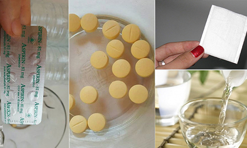 Cách trị viêm nang lông bằng aspirin đòi hỏi chị em cần dành nhiều thời gian thực hiện mới có hiệu quả.