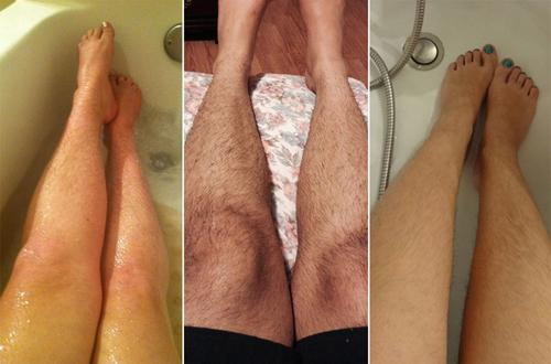 Bệnh viện Thu Cúc có triệt lông dành cho nam không ? Đánh giá từ khách hàng 2