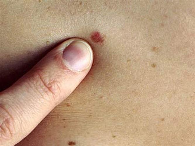 Nốt ruồi có lông có tẩy được không 3