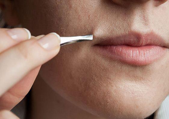 Triệt lông mặt bằng Laser có ảnh hưởng đến da không 3