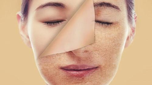 Cách nhận biết 1 làn da nhạy cảm 3