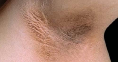 Tổng hợp những tác hại sau khi cạo lông nách 2