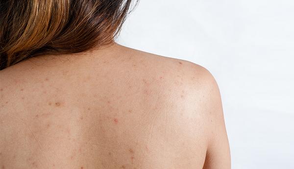 Cách trị viêm nang lông ở lưng hiệu quả 1