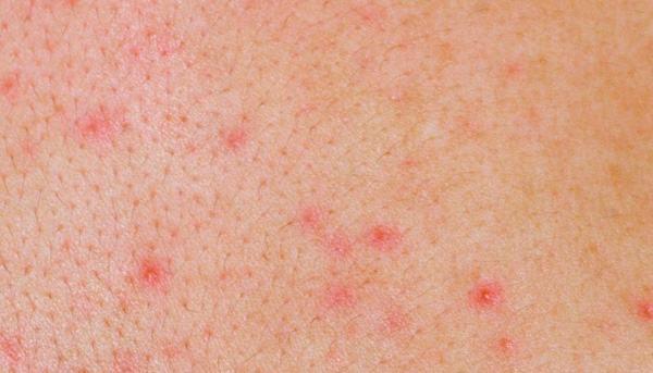 Viêm nang lông ở chân và cách chữa trị 1