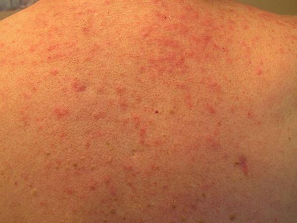 Chữa viêm nang lông ở Thu Cúc Clinics 1