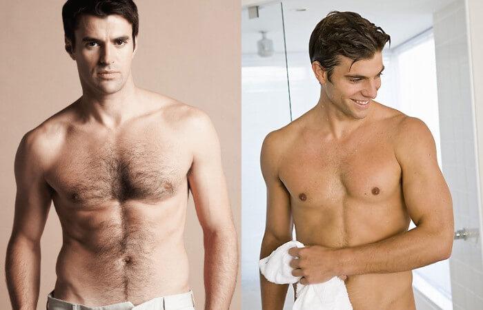 Phương pháp triệt lông vĩnh viễn toàn thân cho nam an toàn, hiệu quả 1
