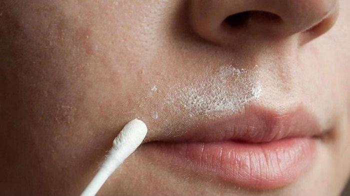 Tẩy ria mép bằng kem đánh răng 1