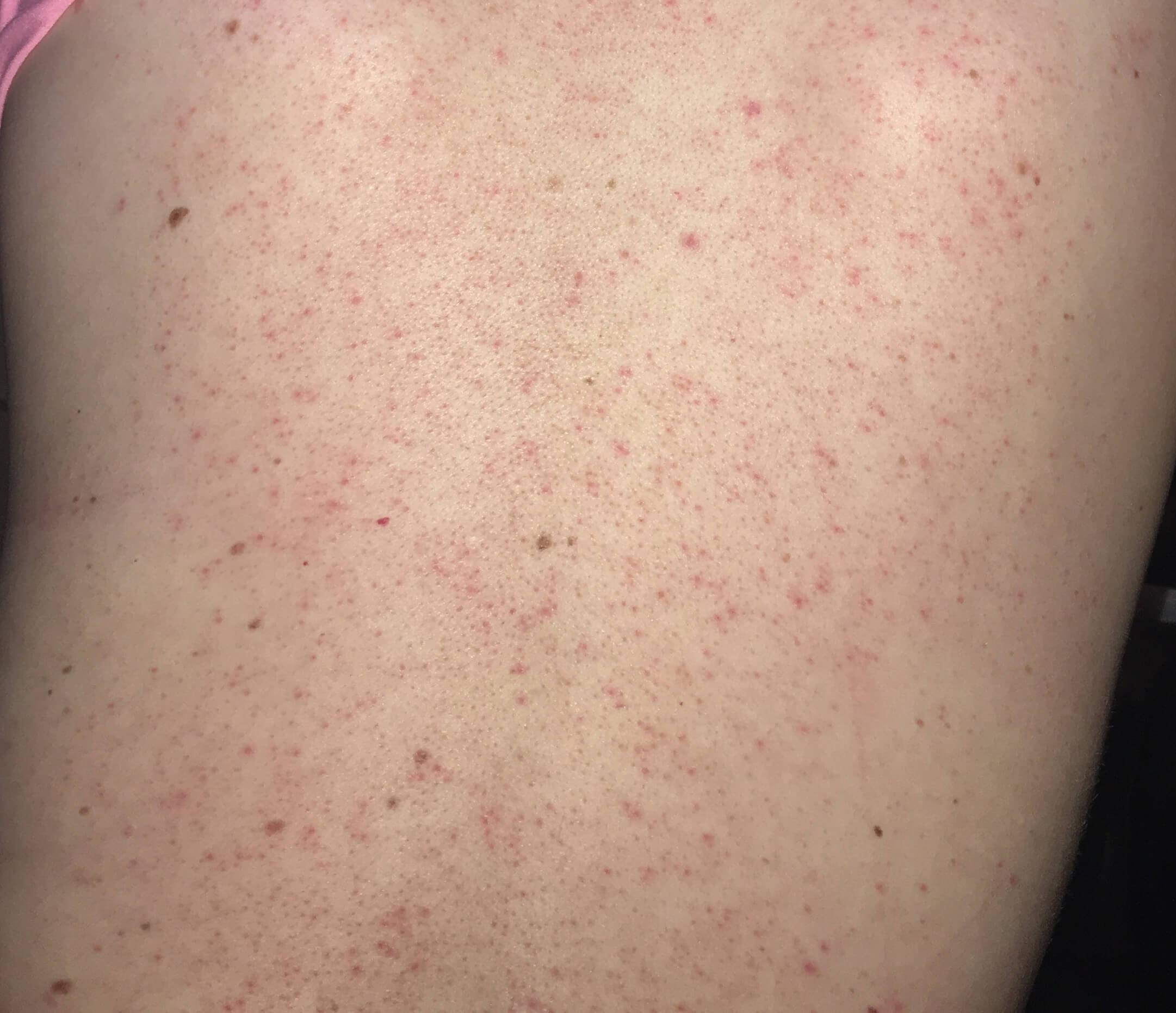 Bật mí cách điều trị viêm nang lông bằng Laser hiệu quả 1