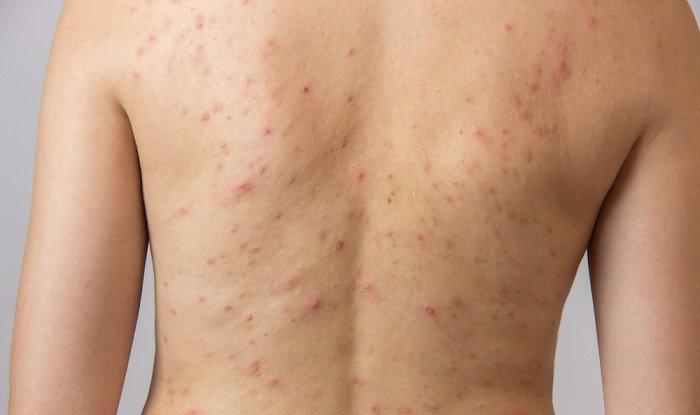 Tổng hợp hình ảnh của bệnh viêm nang lông 4