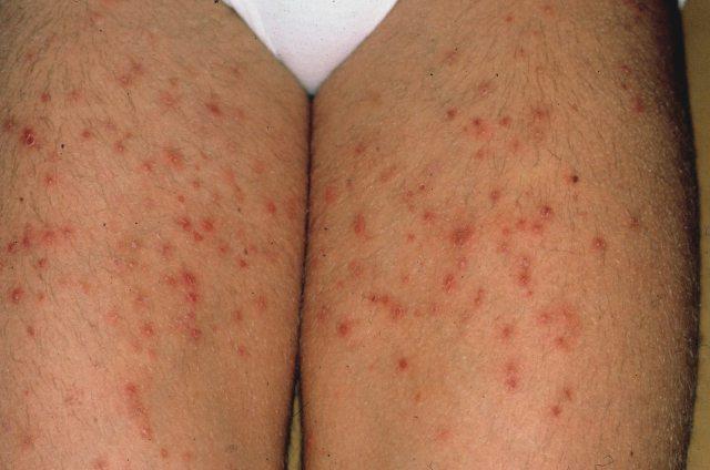 Tổng hợp hình ảnh của bệnh viêm nang lông 3