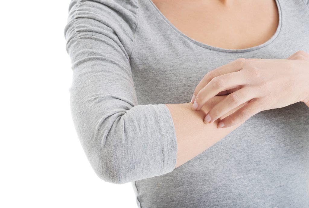 Không đưa tay lên cài, gãi nếu thấy hiện tượng ngứa ngáy vì có thể làm xước da hoặc khiến cho vùng da càng thêm tổn thương, lở loét