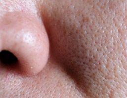 Se khít lỗ chân lông bằng vitamin e